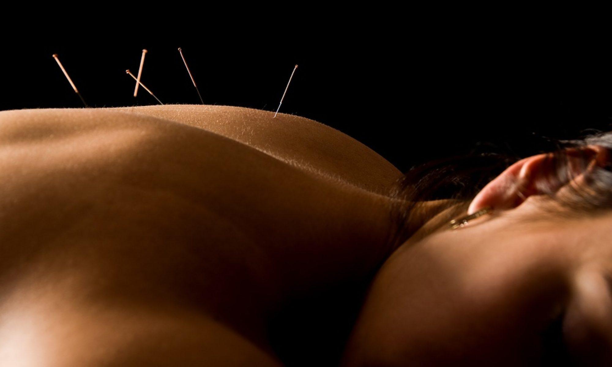 Kerri Myatt Acupuncture